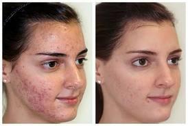 Svetlana's Skin Secrets microdermabrasion